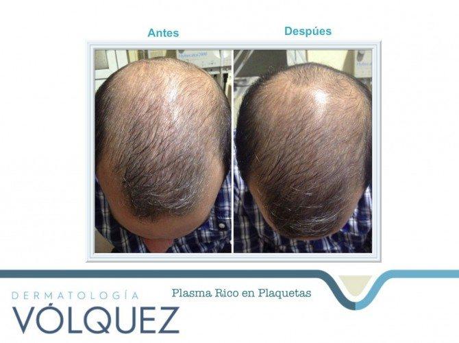 PRP alopecia-compressed