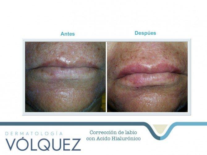 acido-hialuronico-correcion-labios2