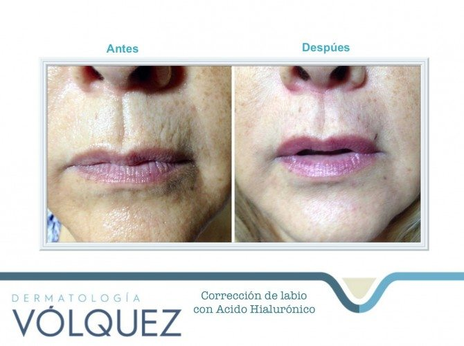 acido-hialuronico-correcion-labios