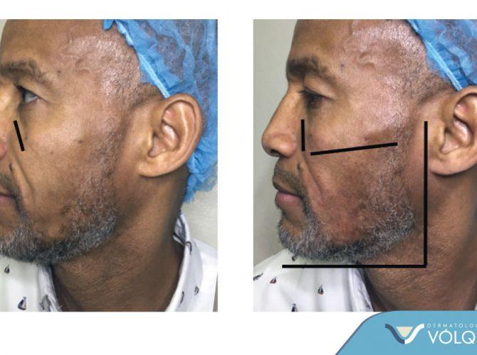 Dermatología Vólquez - Remodelacion Facial Masculina 1